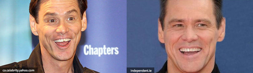 Jim Carrey teeth before and after