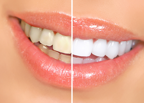 The Wonderful Benefits of a Bright Smile
