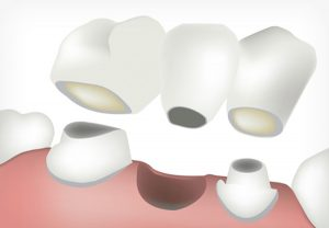 Image of Gap Filling using Bridges - Dental Services in King of Prussia