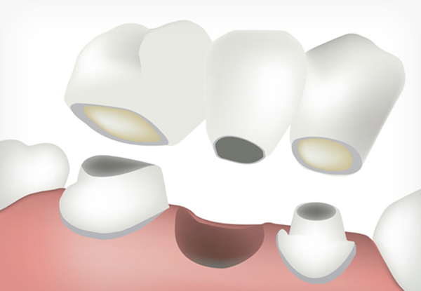 Diagram of a bridge between two teeth