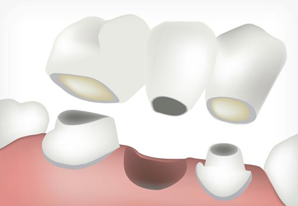 Diagram of a bridge between two teeth