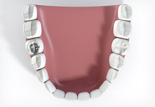 Top down view of fillings in teeth model