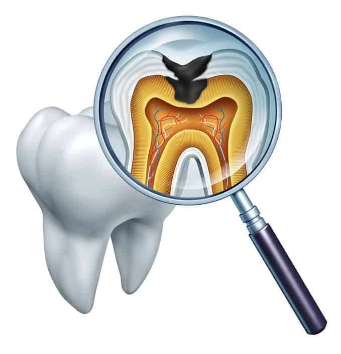 Does it hurt to get your cavities filled?