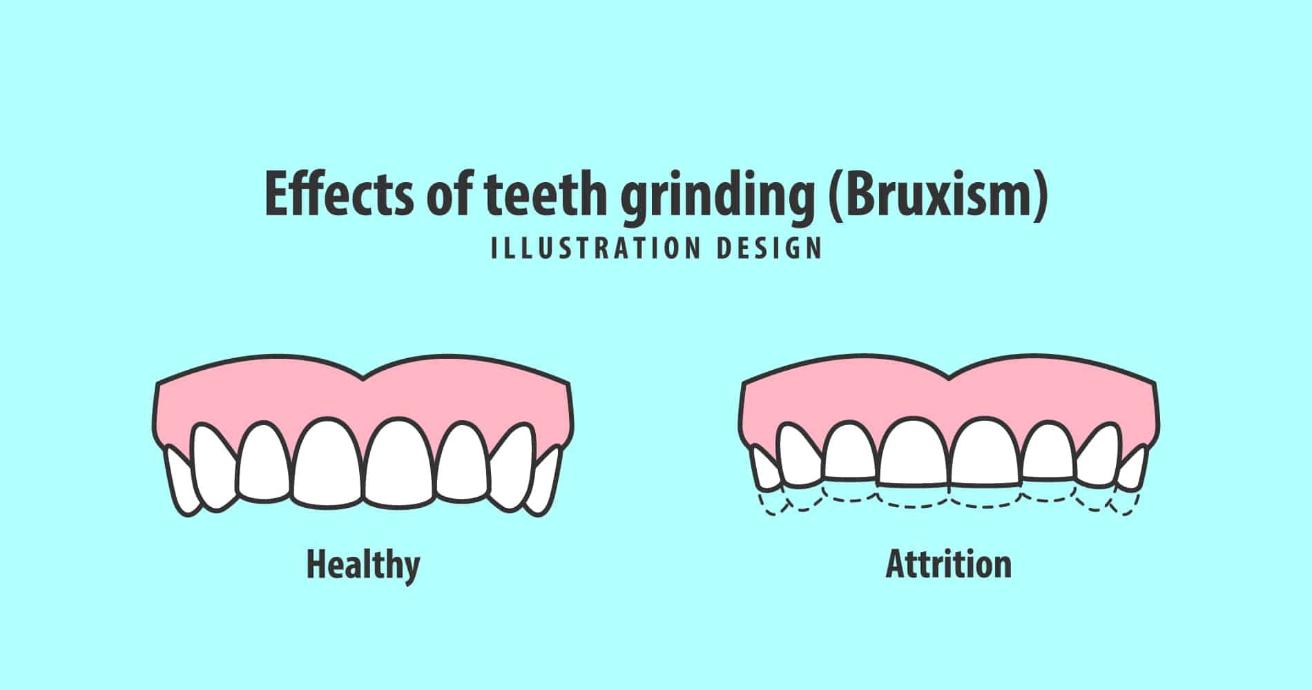 How Teeth Grinding Affects Your Overall Well-being